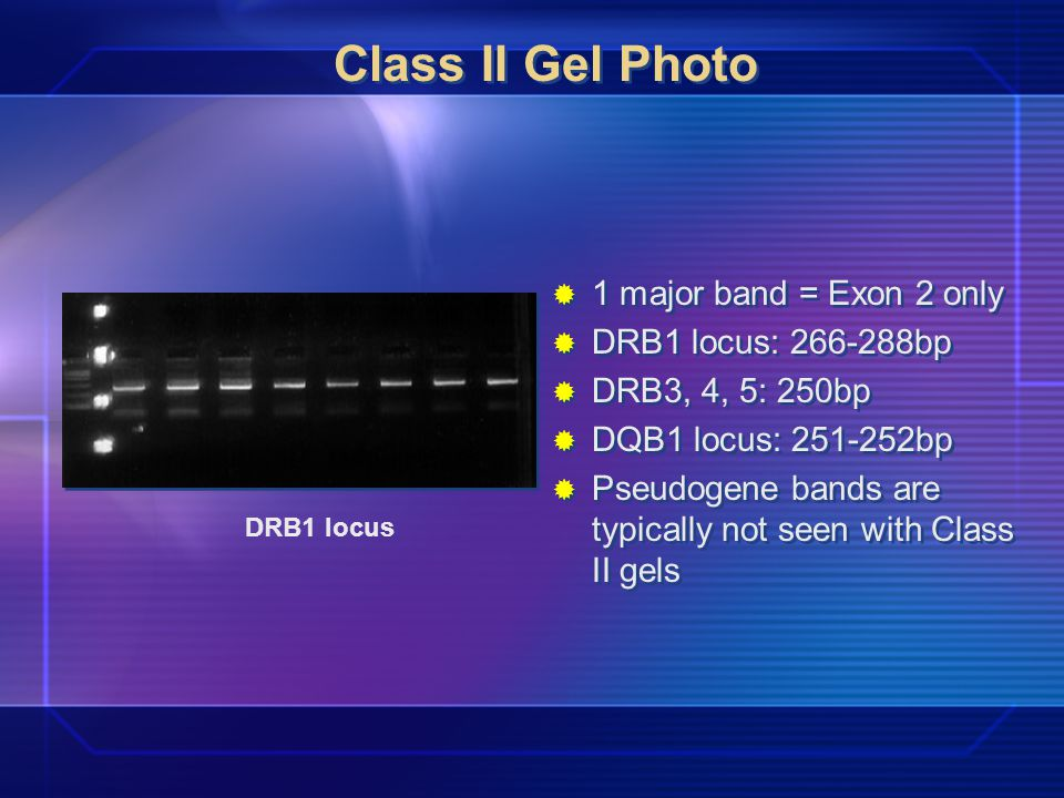 Class II Gel Photo 1 major band = Exon 2 only DRB1 locus: 266-288bp DRB3, 4, 5: 250bp DQB1 locus: 251-252bp Pseudogene bands are typically not seen with Class II gels DRB1 locus