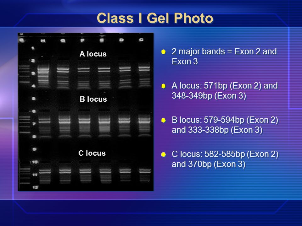 Class I Gel Photo 2 major bands = Exon 2 and Exon 3 A locus: 571bp (Exon 2) and 348-349bp (Exon 3) B locus: 579-594bp (Exon 2) and 333-338bp (Exon 3) C locus: 582-585bp (Exon 2) and 370bp (Exon 3) A locus B locus C locus