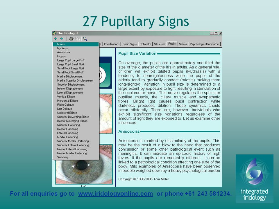 For all enquiries go to www.iridologyonline.com or phone +61 243 581234. 27 Pupillary Signs