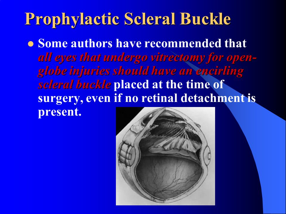 Prophylactic Scleral Buckle all eyes that undergo vitrectomy for open- globe injuries should have an encirling scleral buckle Some authors have recomm