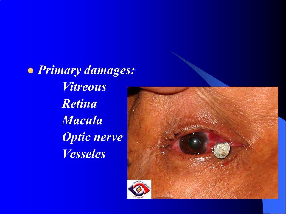 Primary damages: Vitreous Retina Macula Optic nerve Vesseles
