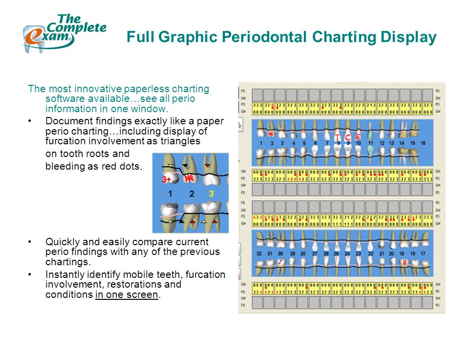 Full Graphic Periodontal Charting Display The most innovative paperless charting software available…see all perio information in one window.