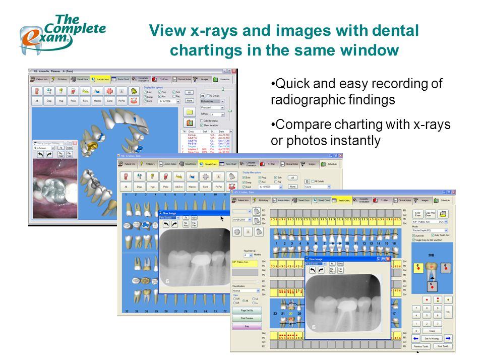 View x-rays and images with dental chartings in the same window Quick and easy recording of radiographic findings Compare charting with x-rays or photos instantly