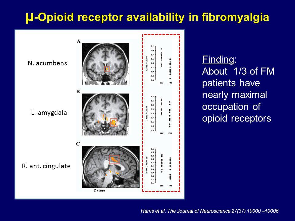 N. acumbens L. amygdala R. ant. cingulate Harris et al. The Journal of Neuroscience 27(37):10000 –10006 μ -Opioid receptor availability in fibromyalgi