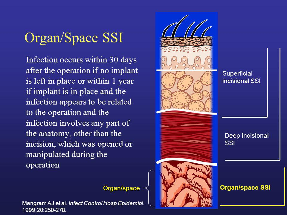 Organ/Space SSI Infection occurs within 30 days after the operation if no implant is left in place or within 1 year if implant is in place and the inf