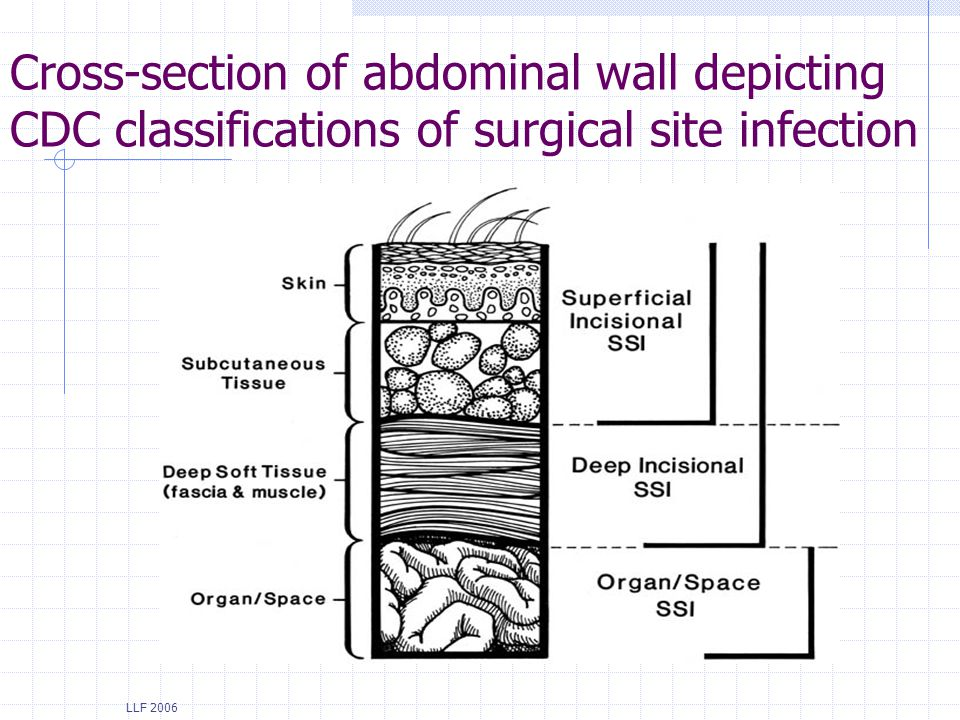LLF 2006 Cross-section of abdominal wall depicting CDC classifications of surgical site infection