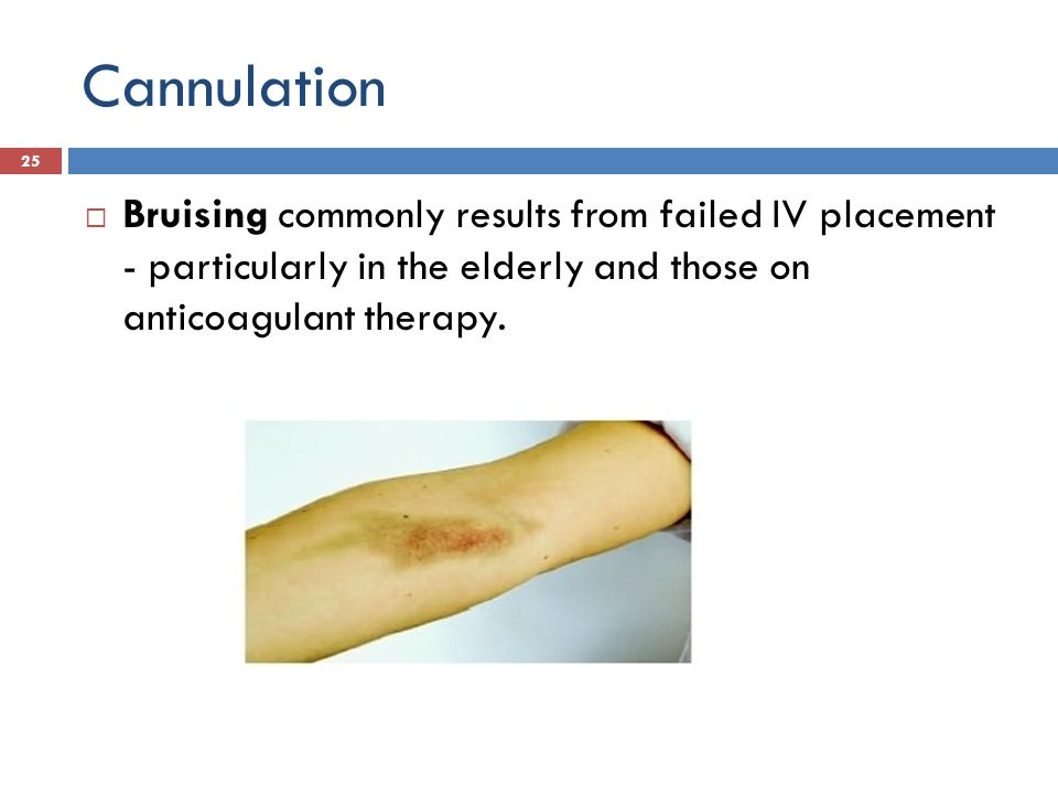 Cannulation Bruising commonly results from failed IV placement - particularly in the elderly and those on anticoagulant therapy. 25
