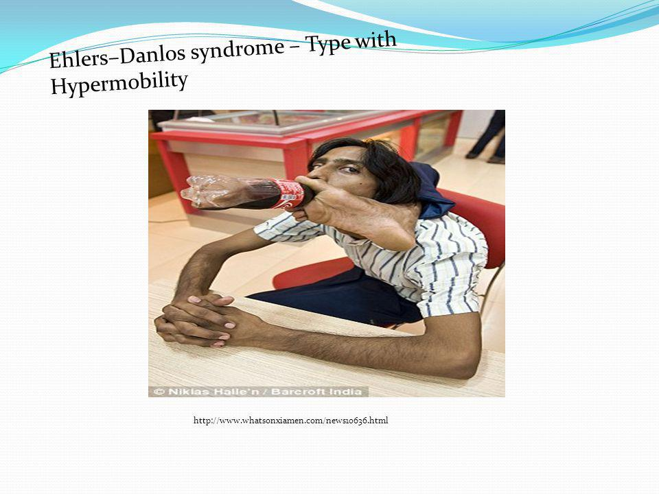 Ehlers–Danlos syndrome – Type with Hypermobility http://www.whatsonxiamen.com/news10636.html