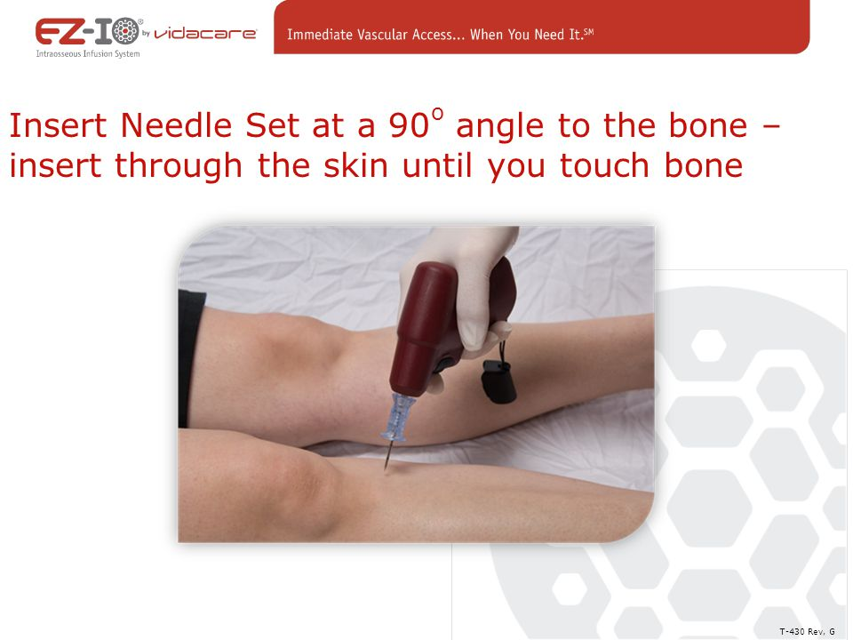 Insert Needle Set at a 90 o angle to the bone – insert through the skin until you touch bone T-430 Rev, G