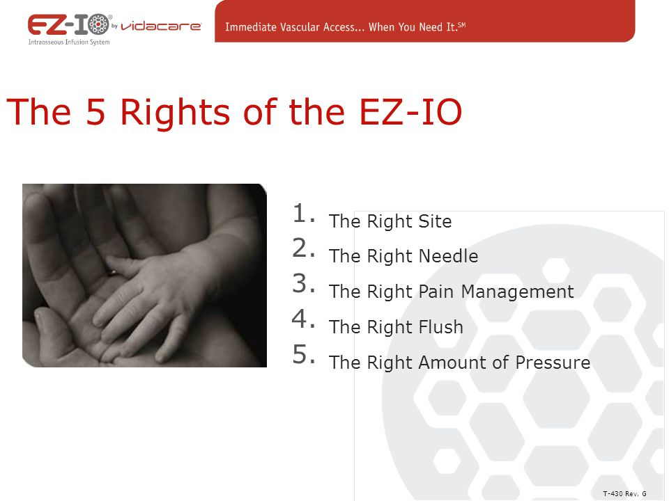 The 5 Rights of the EZ-IO 1.The Right Site 2. The Right Needle 3.