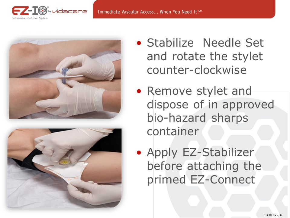 Stabilize Needle Set and rotate the stylet counter-clockwise Remove stylet and dispose of in approved bio-hazard sharps container Apply EZ-Stabilizer before attaching the primed EZ-Connect T-430 Rev, G Removal of the Stylet