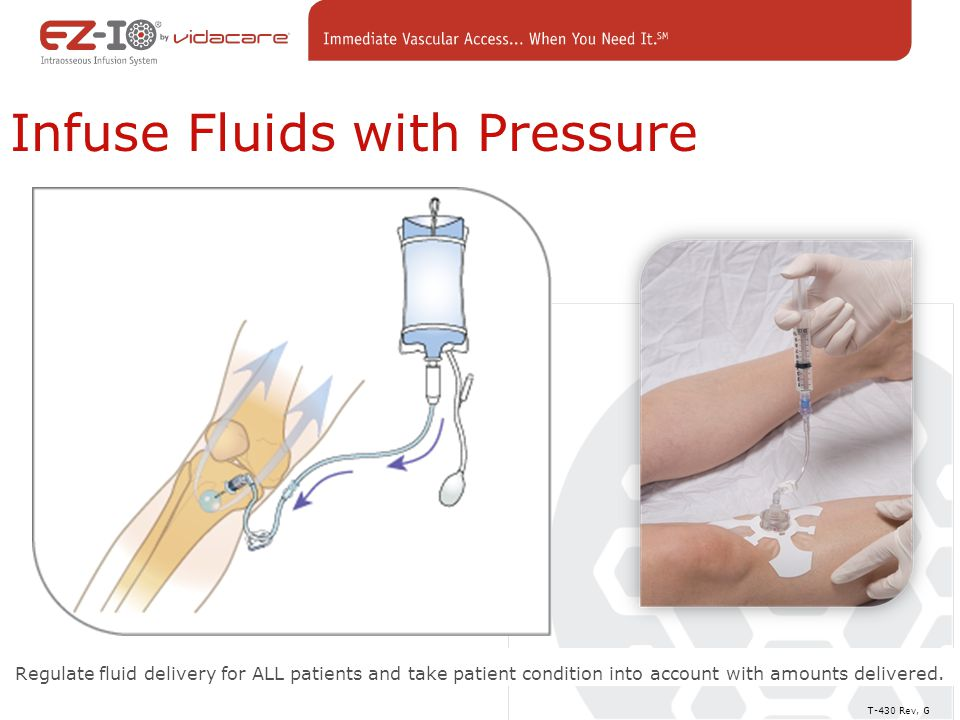 Regulate fluid delivery for ALL patients and take patient condition into account with amounts delivered.