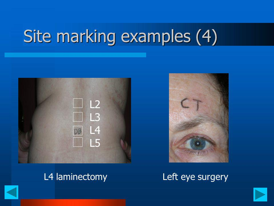 Site marking examples (4) L2 L3 L4 L5 L4 laminectomyLeft eye surgery