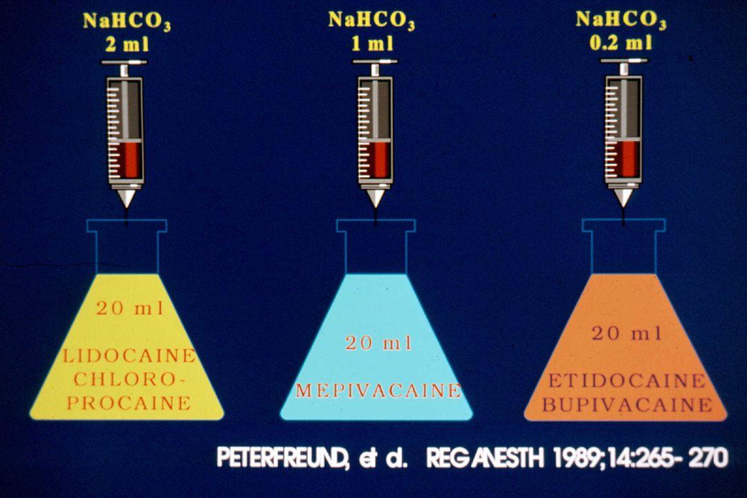 1% Lido Rat Sciatic Nerve Block Sinnott, et al. Anesthesiology 2000;93:1045-52 Plain NaOH NaHCO3