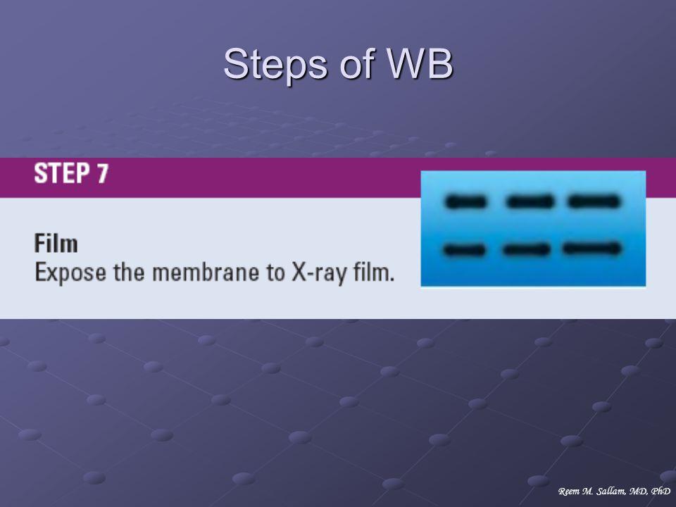 Steps of WB Reem M. Sallam, MD, PhD