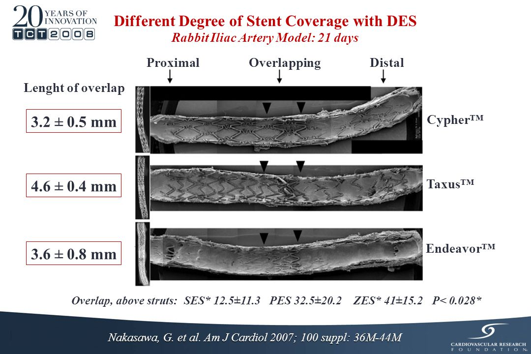 Nakasawa, G. et al. Am J Cardiol 2007; 100 suppl: 36M-44M Different Degree of Stent Coverage with DES Rabbit Iliac Artery Model: 21 days 4.6 ± 0.4 mm