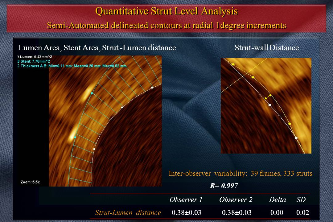 Quantitative Strut Level Analysis Semi-Automated delineated contours at radial 1degree increments Quantitative Strut Level Analysis Semi-Automated del