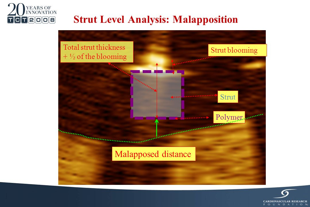 Strut Polymer Total strut thickness + ½ of the blooming Strut Level Analysis: Malapposition Malapposed distance Strut blooming