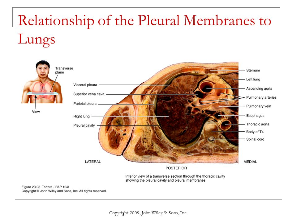 Copyright 2009, John Wiley & Sons, Inc. Relationship of the Pleural Membranes to Lungs