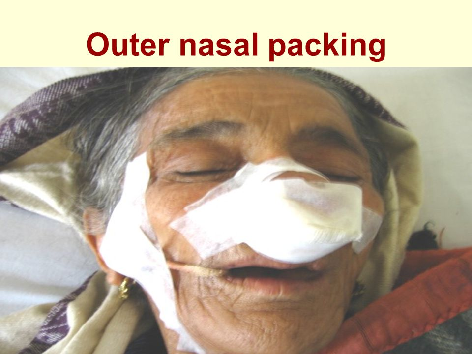 Outer nasal packing