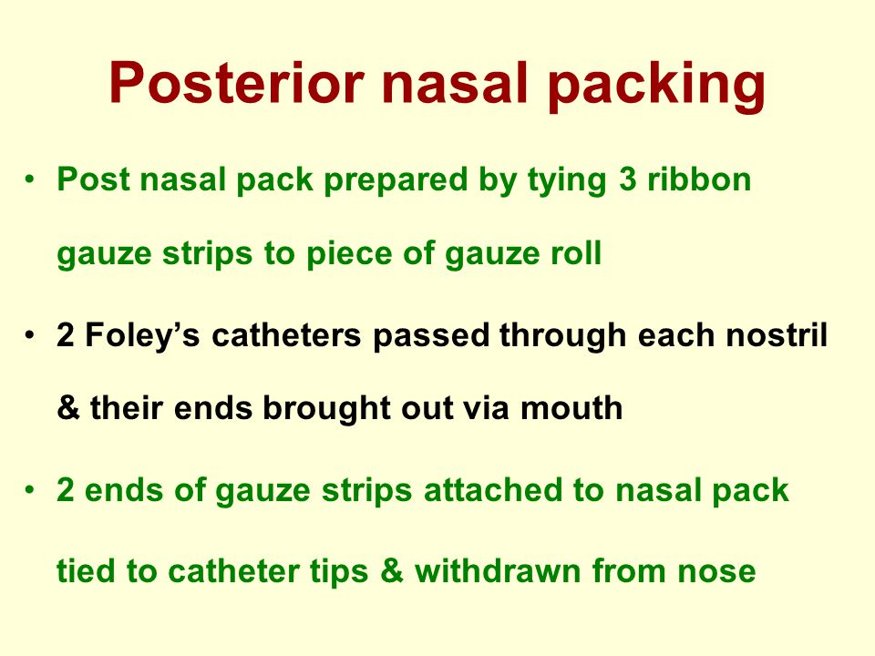 Posterior nasal packing Post nasal pack prepared by tying 3 ribbon gauze strips to piece of gauze roll 2 Foleys catheters passed through each nostril