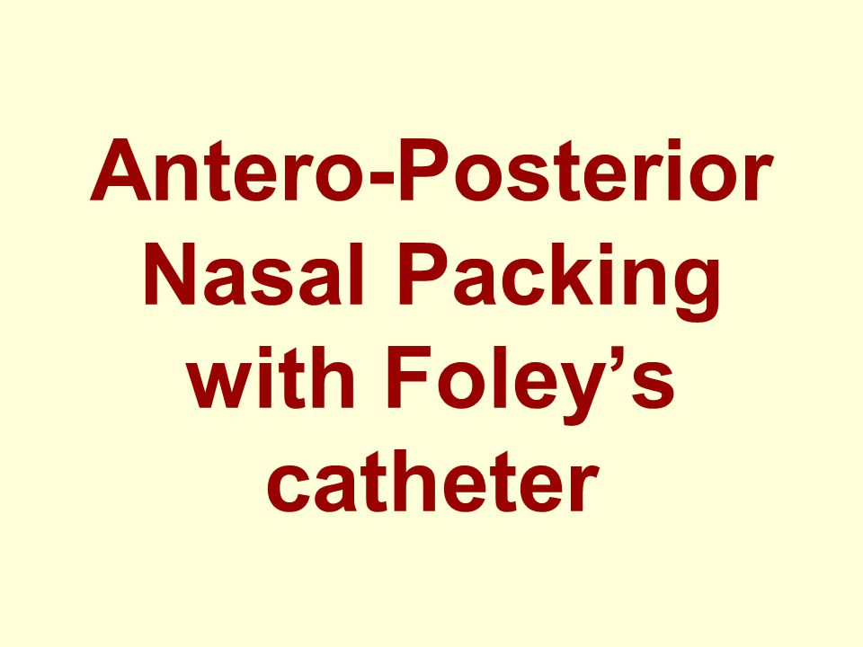 Antero-Posterior Nasal Packing with Foleys catheter