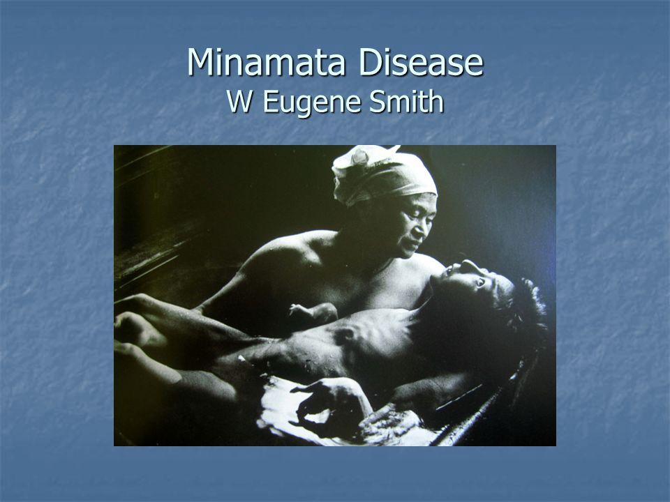 Minamata Disease W Eugene Smith