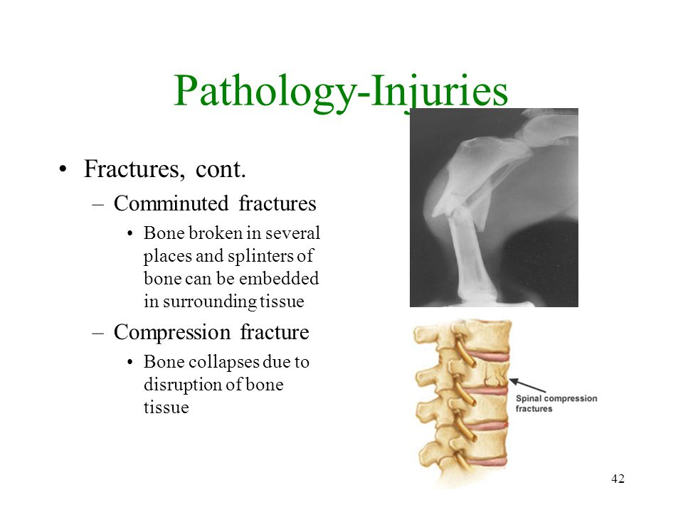 41 Pathology-Injuries Fractures –Incomplete fracture Fracture line doses not extend through bone or disrupt the entire thickness of bone –Greenstick f