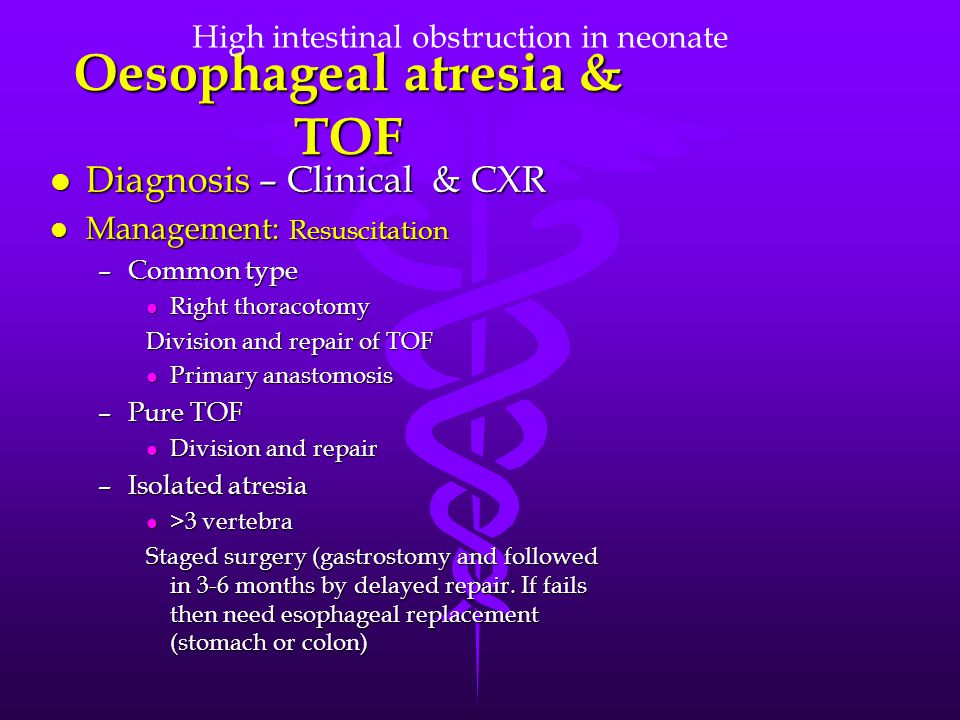Oesophageal atresia & TOF l Diagnosis – Clinical & CXR l Management: Resuscitation –Common type l Right thoracotomy Division and repair of TOF l Prima