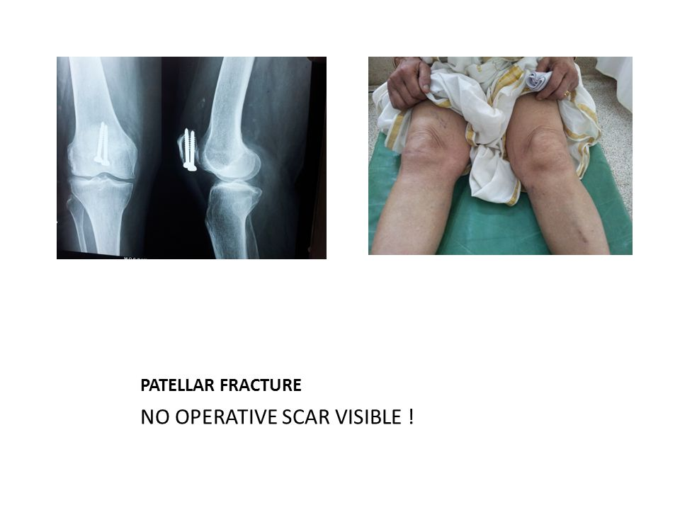 PATELLAR FRACTURE NO OPERATIVE SCAR VISIBLE !