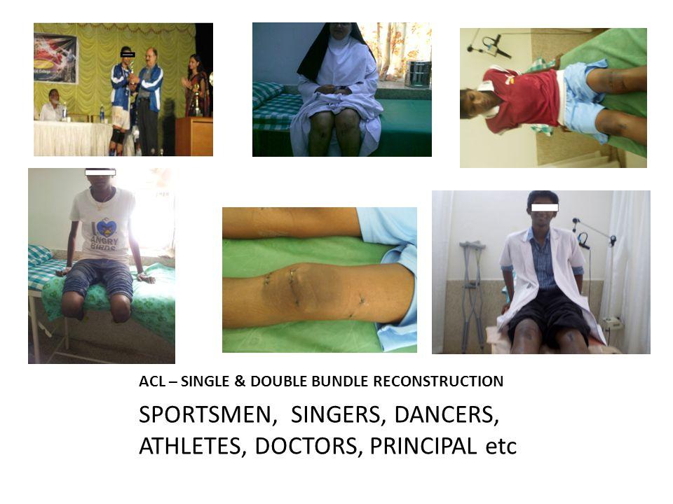 ACL – SINGLE & DOUBLE BUNDLE RECONSTRUCTION SPORTSMEN, SINGERS, DANCERS, ATHLETES, DOCTORS, PRINCIPAL etc