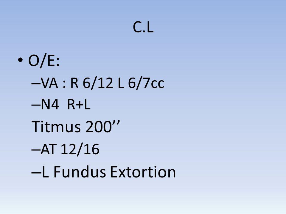 C.L O/E: – VA : R 6/12 L 6/7cc – N4 R+L Titmus 200 – AT 12/16 – L Fundus Extortion
