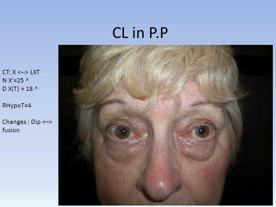 CL in P.P CT: X LXT N X=25 ^ D X(T) = 18 ^ RHypoT=4 Changes : Dip fusion