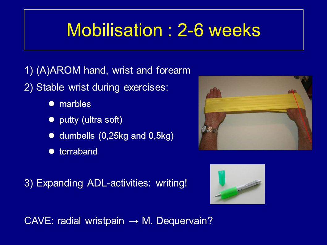 Mobilisation : 2-6 weeks 1) (A)AROM hand, wrist and forearm 2) Stable wrist during exercises: marbles putty (ultra soft) dumbells (0,25kg and 0,5kg) t