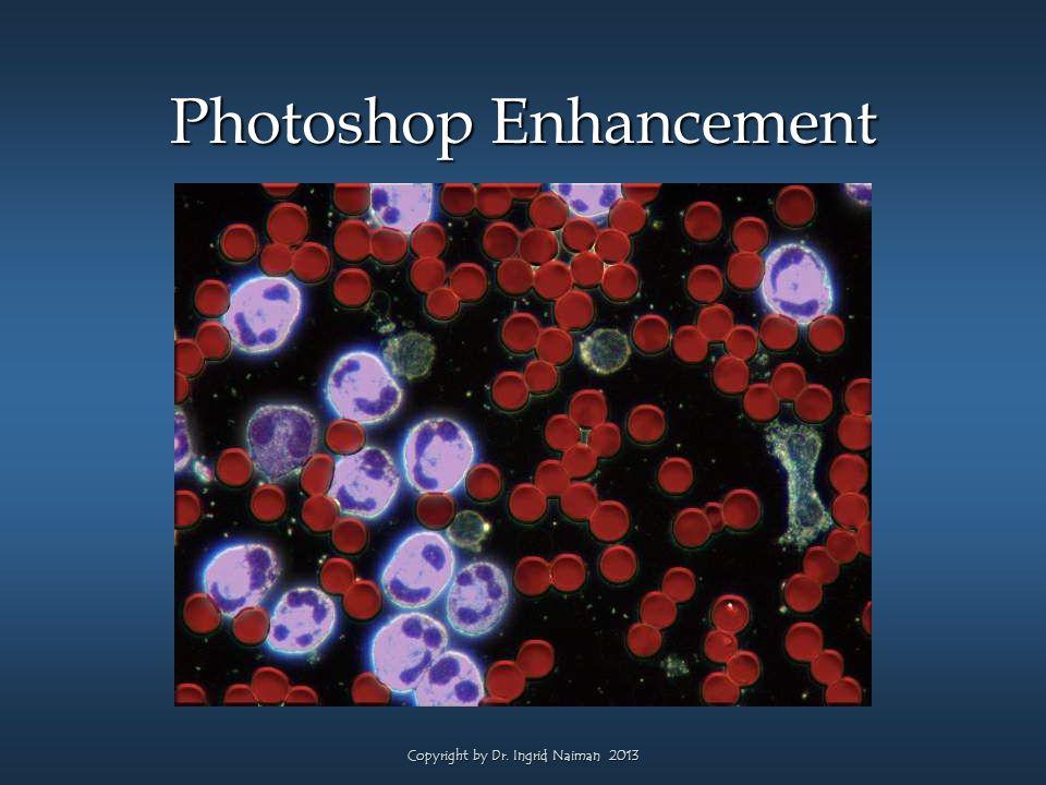 Photoshop Enhancement Copyright by Dr. Ingrid Naiman 2013