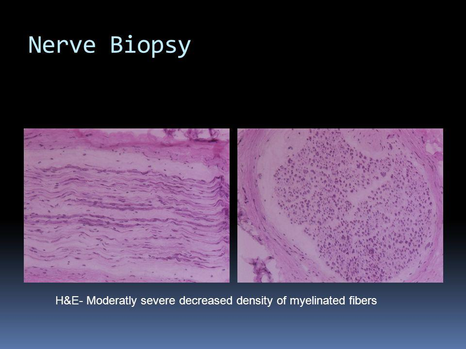 Nerve Biopsy H&E- Moderatly severe decreased density of myelinated fibers