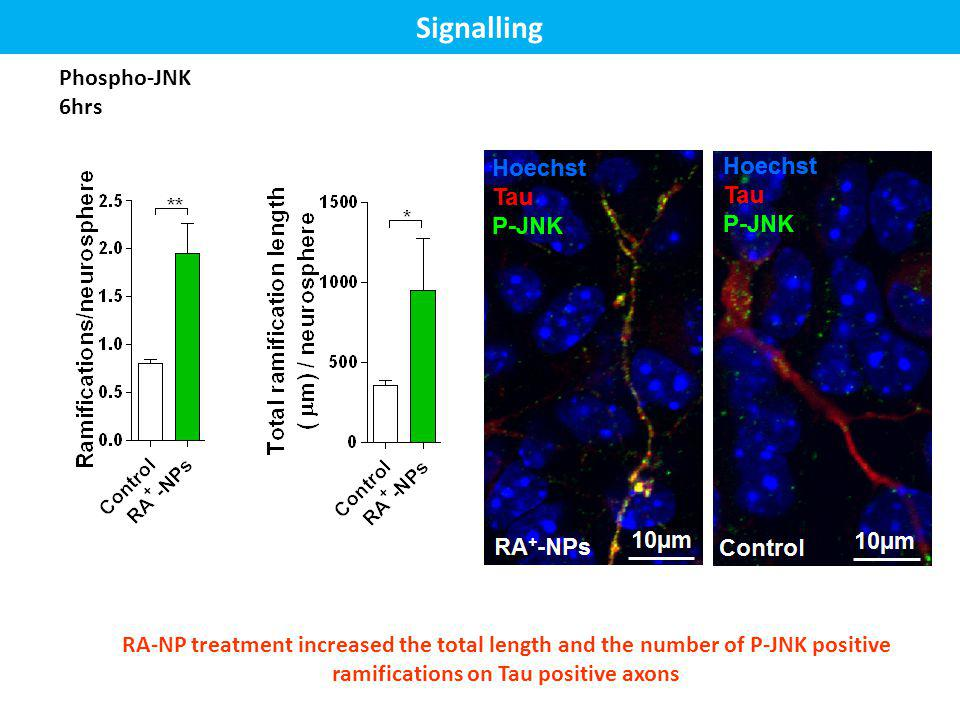 Phospho-JNK 6hrs RA-NP treatment increased the total length and the number of P-JNK positive ramifications on Tau positive axons Signalling