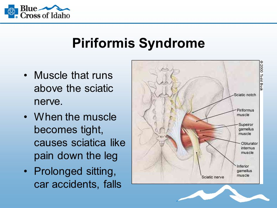 Piriformis Syndrome Muscle that runs above the sciatic nerve. When the muscle becomes tight, causes sciatica like pain down the leg Prolonged sitting,