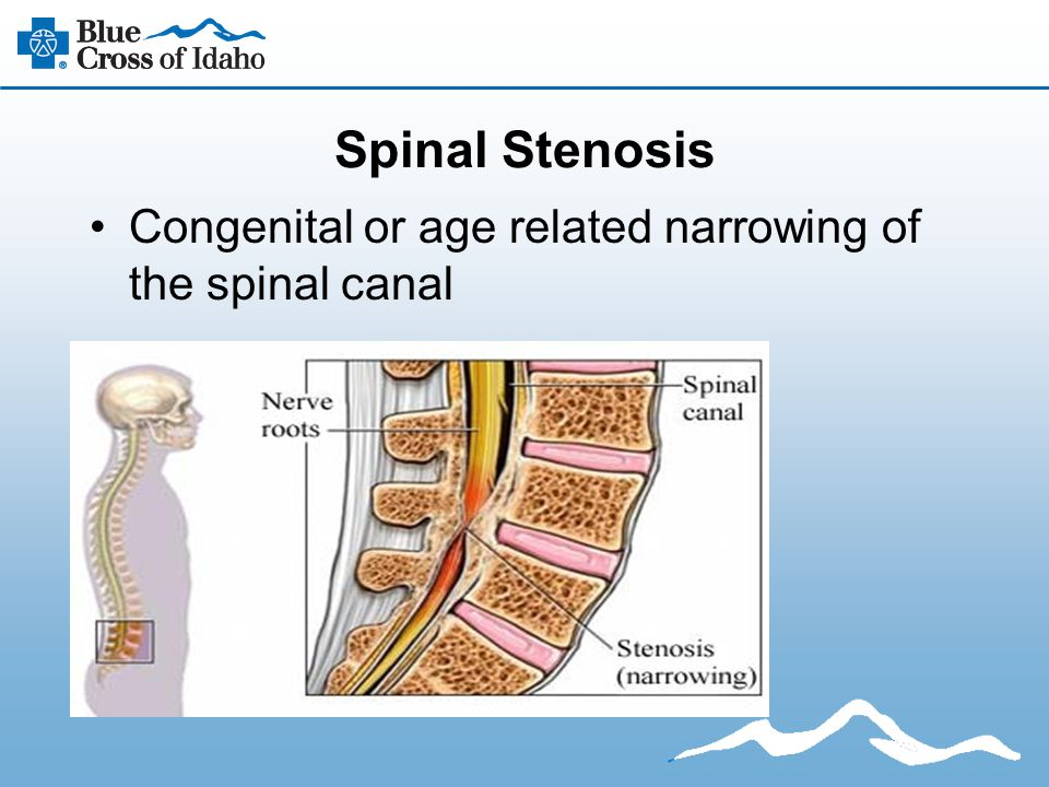 Spinal Stenosis Congenital or age related narrowing of the spinal canal