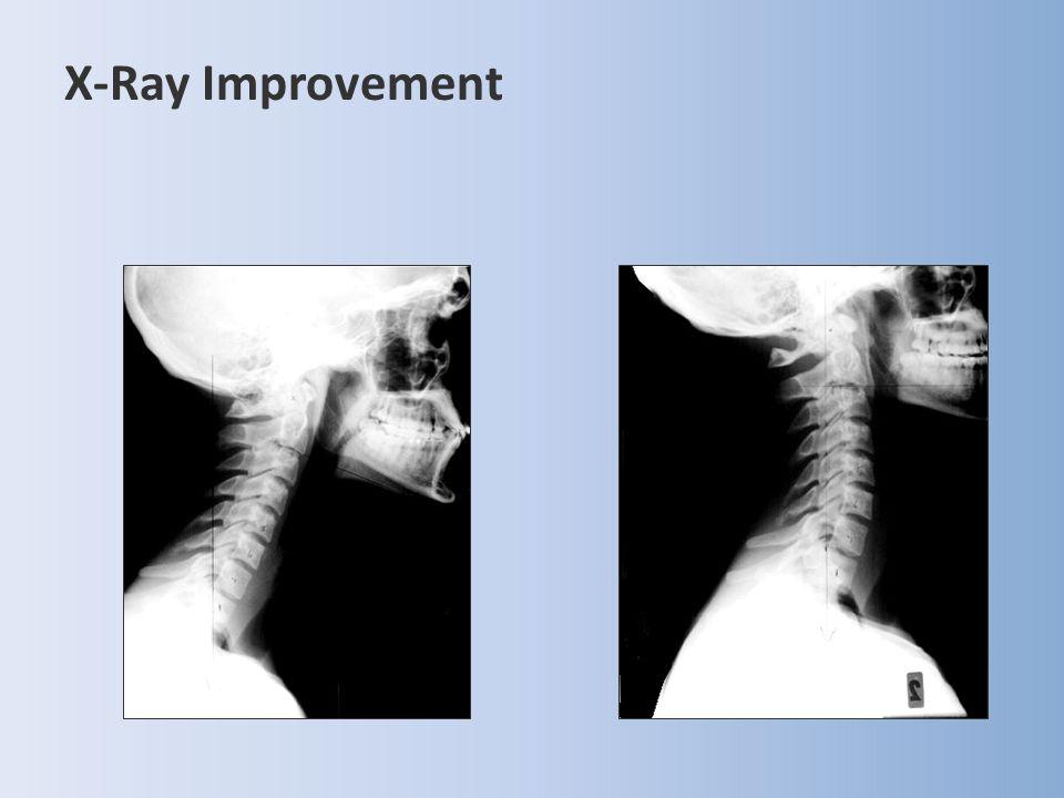 X-Ray Improvement