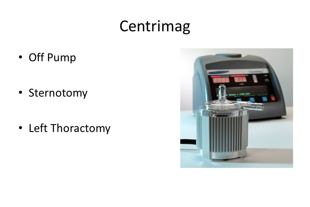 Centrimag Off Pump Sternotomy Left Thoractomy