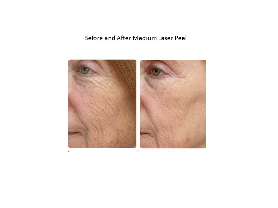 Before and After Medium Laser Peel