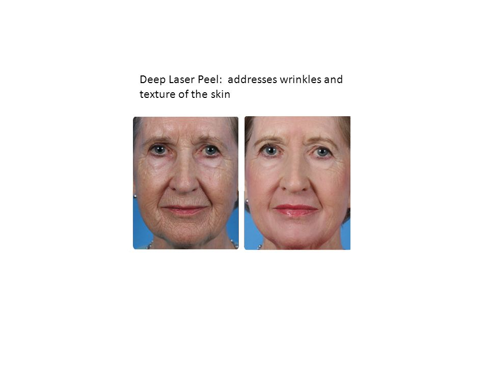 Deep Laser Peel: addresses wrinkles and texture of the skin