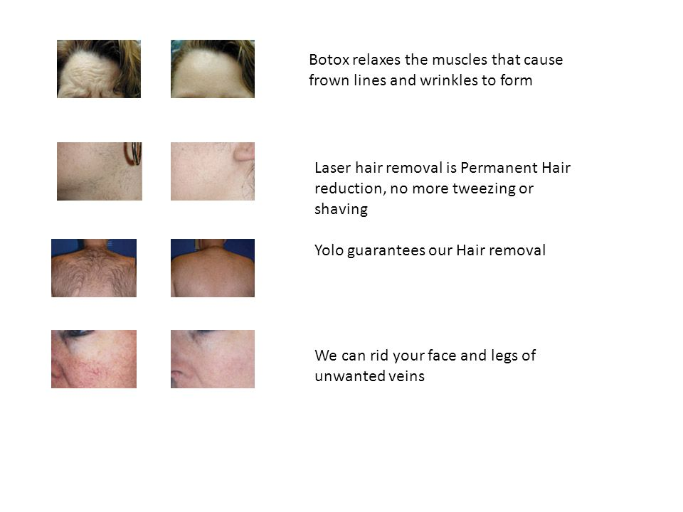 Botox relaxes the muscles that cause frown lines and wrinkles to form Laser hair removal is Permanent Hair reduction, no more tweezing or shaving Yolo