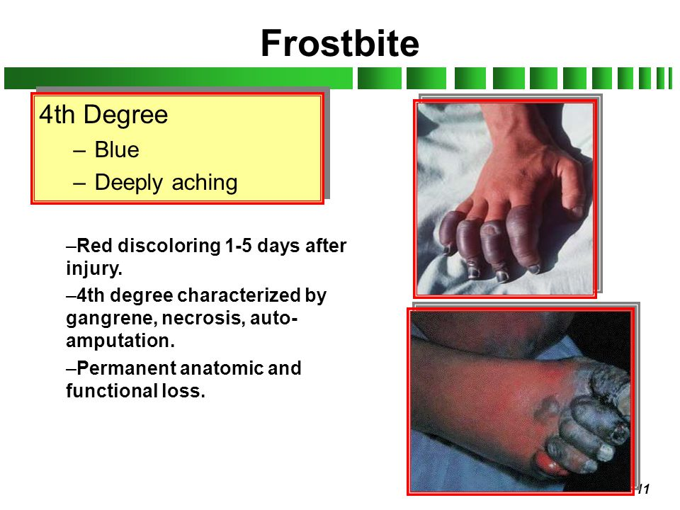 11 Frostbite 4th Degree –Blue –Deeply aching 4th Degree –Blue –Deeply aching –Red discoloring 1-5 days after injury. –4th degree characterized by gang