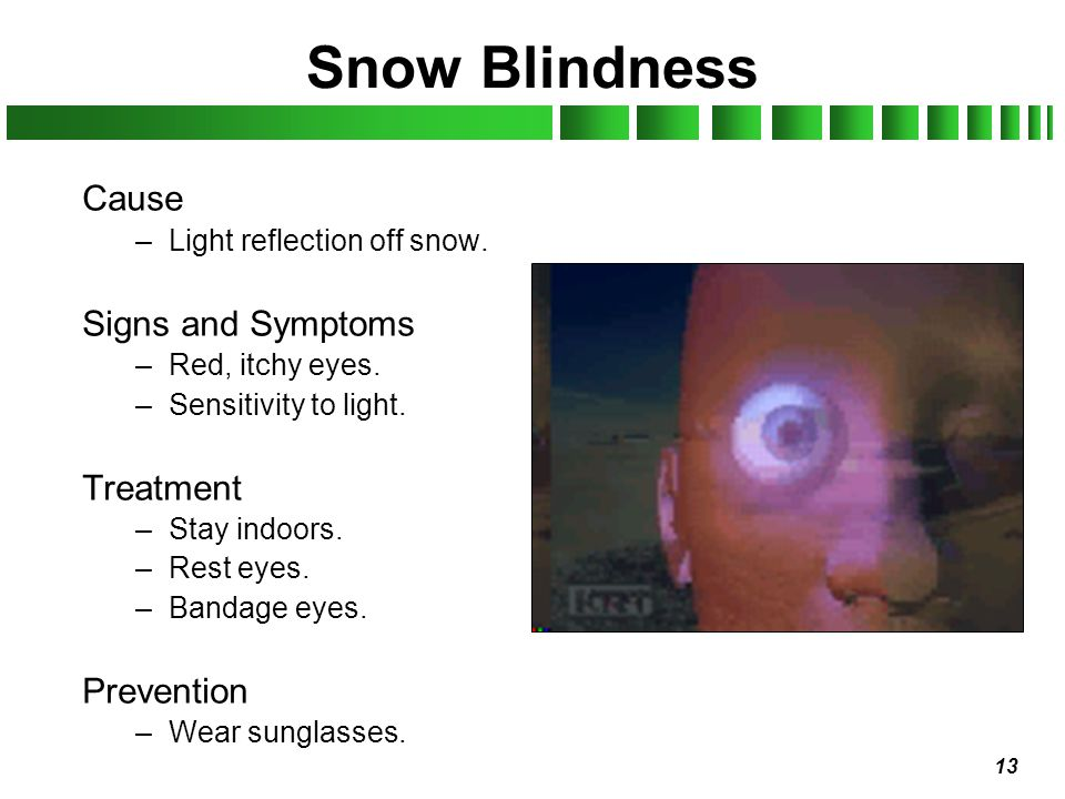13 Snow Blindness Cause –Light reflection off snow. Signs and Symptoms –Red, itchy eyes. –Sensitivity to light. Treatment –Stay indoors. –Rest eyes. –