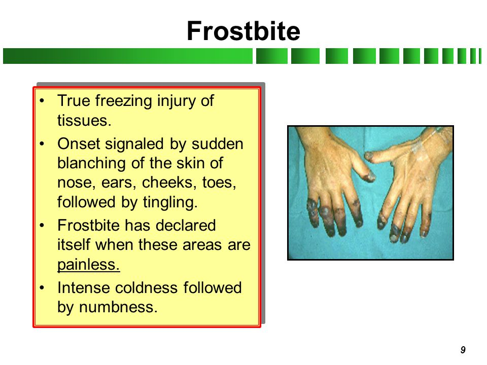 9 Frostbite True freezing injury of tissues. Onset signaled by sudden blanching of the skin of nose, ears, cheeks, toes, followed by tingling. Frostbi