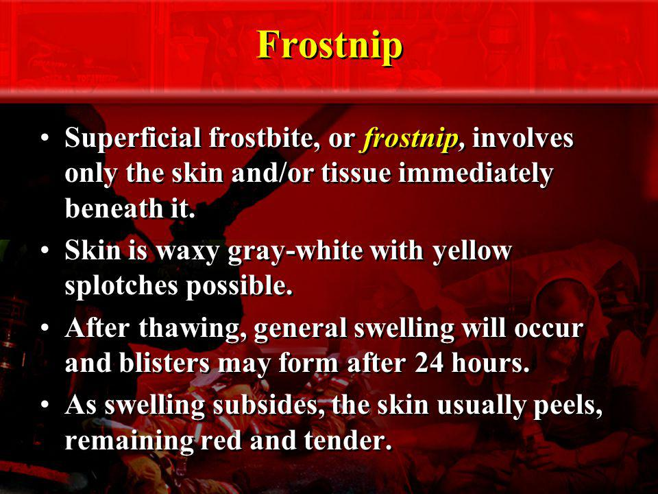 Frostnip Superficial frostbite, or frostnip, involves only the skin and/or tissue immediately beneath it. Skin is waxy gray-white with yellow splotche