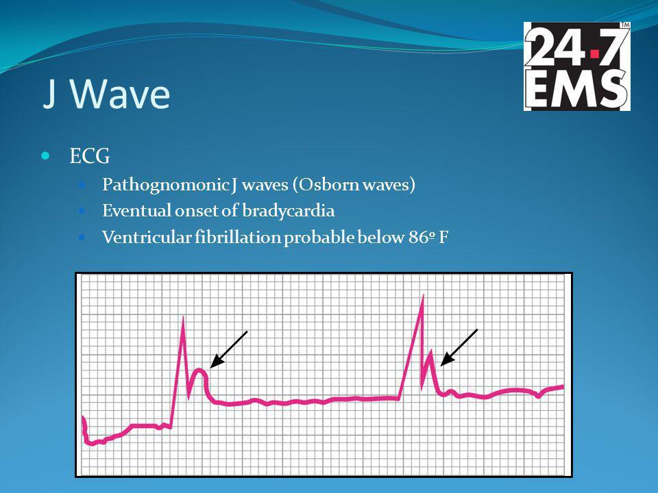 J Wave ECG Pathognomonic J waves (Osborn waves) Eventual onset of bradycardia Ventricular fibrillation probable below 86º F