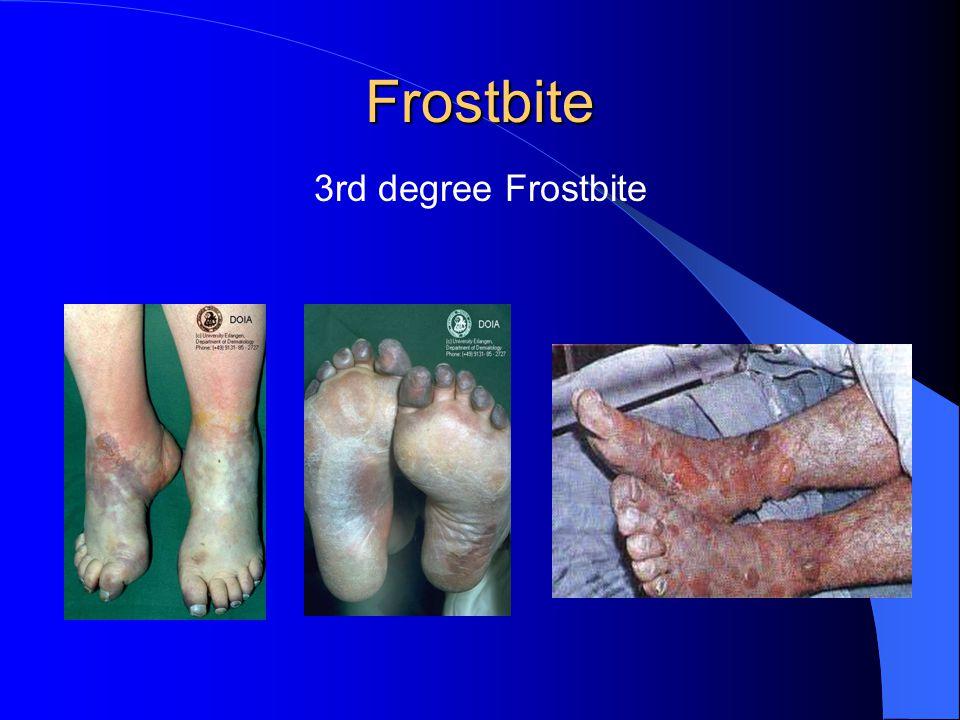 Frostbite 3rd degree Frostbite